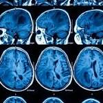 Brain Cancers Both Common and Deadly Among Teens, Young Adults: Report