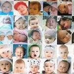 Photo app screens babies for jaundice