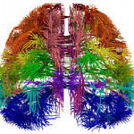 New brain map: Over 90 new areas discovered