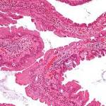 Colon Cancer Screenings Work, Twin Studies Report