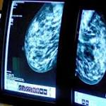 High-fat diets linked to some types of breast cancer