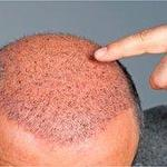Male baldness 'indicates heart risk'