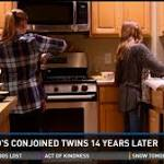 These aren't your typical twins, they were born conjoined