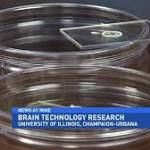 Dissolvable Brain Implant Being Tested At University Of Illinois