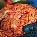 Brain Injuries May Raise Risk of Early Death